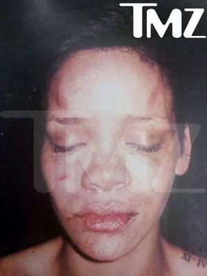 Rihanna After Chris Brown Beatdown.  Photo: TMZ.com Exclusive!